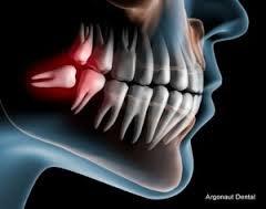 Carson Oral Surgery